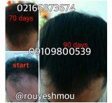 درمان ریزش موی شقیقه را از ما بپرسید