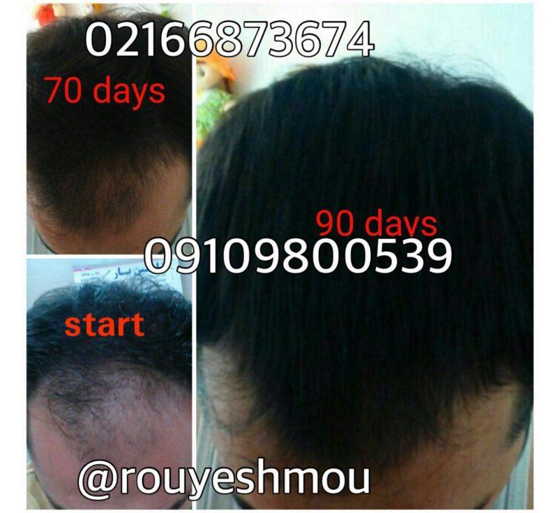 photo 2018 08 13 09 54 21 800x736 - درمان ریزش موی شقیقه را از ما بپرسید