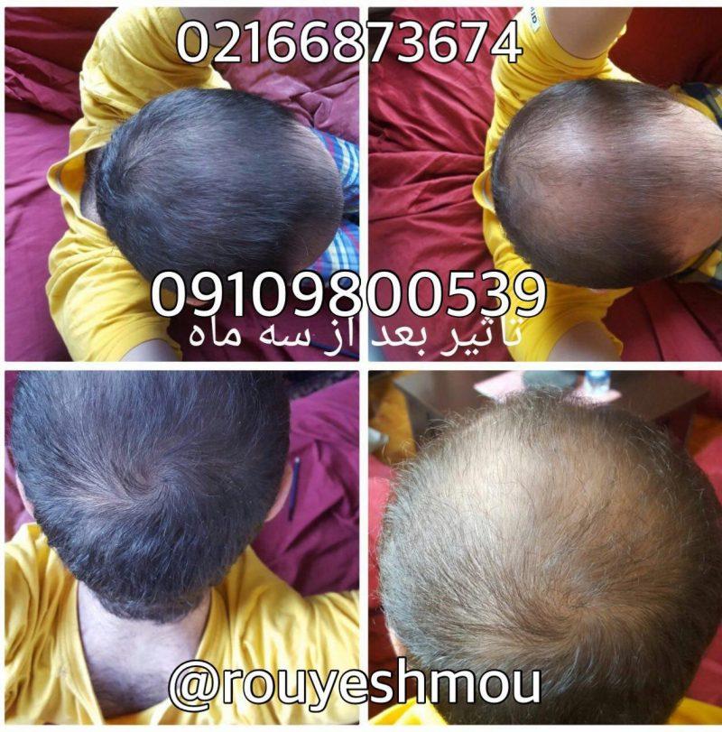 photo 2018 08 13 09 54 53 800x811 - چگونه از موهای خود مراقبت کنیم؟