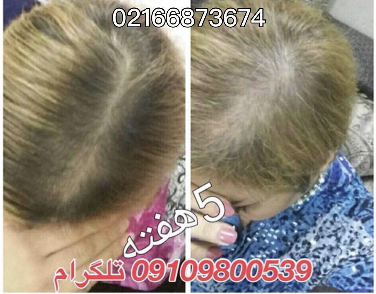 راه های تقویت موی خود را بشناسید