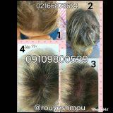 راه های افزایش رشد مو را بشناسید