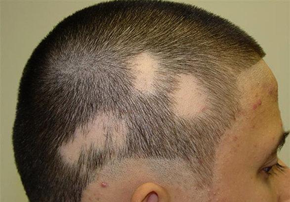 ریزش منطقه ای مو چیست؟