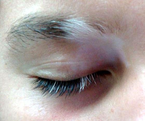 white eyebrow hairs 02 - علت سفید شدن ابرو در جوانی