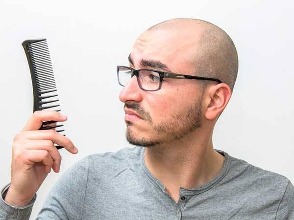 D8B1DB8CD8B2D8B4 D985D988 D8AFD8B1 D8ACD988D8A7D986DB8C 3 - شایع ترین دلایل ریزش مو و کچلی در جوانی