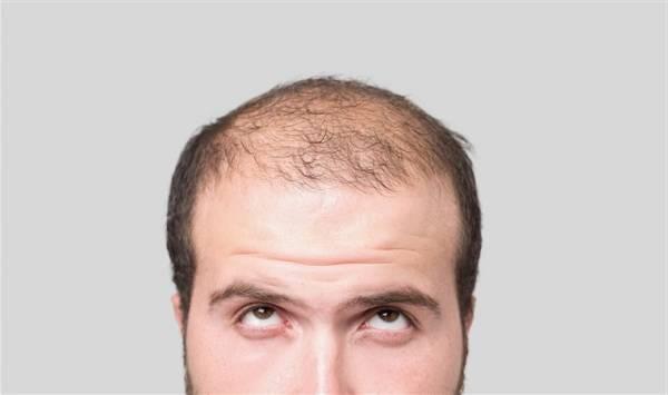 D8B1DB8CD8B2D8B4 D985D988 D8AFD8B1 D8ACD988D8A7D986DB8C 4 - شایع ترین دلایل ریزش مو و کچلی در جوانی