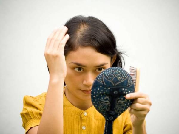 D8B1DB8CD8B2D8B4 D985D988 D8AFD8B1 D8ACD988D8A7D986DB8C 5 - شایع ترین دلایل ریزش مو و کچلی در جوانی