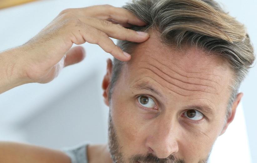 hair-loss-7.jpg