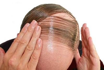 hair-loss-treatment-1.jpg