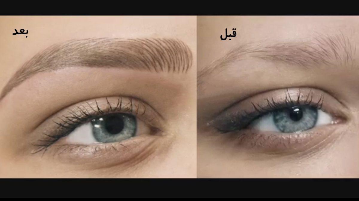 Fibros-eyebrow-1200x673.jpg