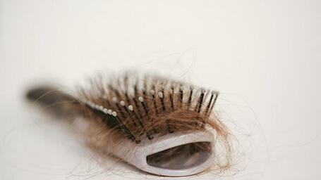 hair-loss19.jpg