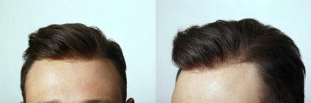 ترمیم مو چیست