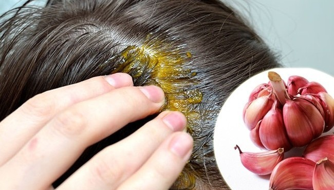 8 درمان طبیعی برای موهای نازک شده