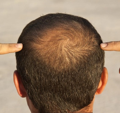 Image result for درمان کم پشتی موها