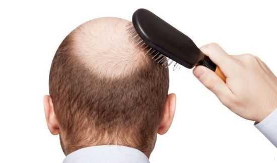 درمان قطعی ریزش مو توسط طب سنتی