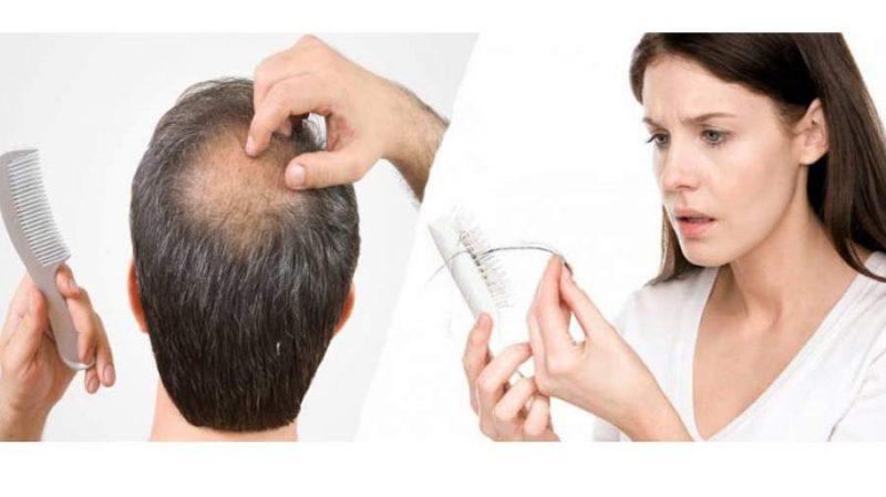 n00045017 b 1 800x449 - 10 علت ریزش مو