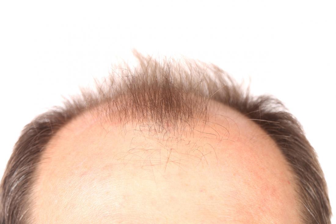 top of head with receding hairline 1 1 - کچلی مردان میراث پدری است