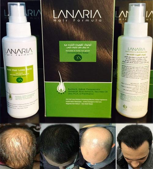 lanavia 3 - ۱۲ سبزی شگفت انگیز برای رشد مو