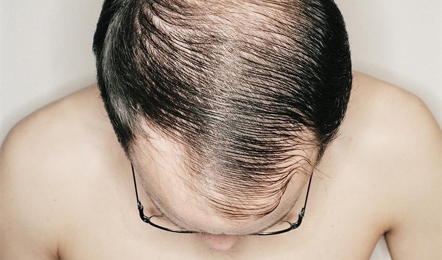9 عامل موثر در ریزش موی مردان