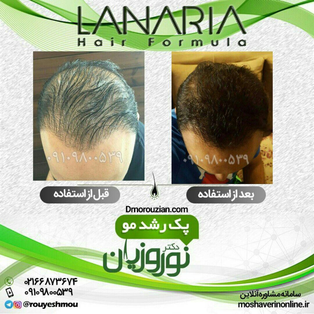 پکیجی قدرتمند برای درمان ریزش مو