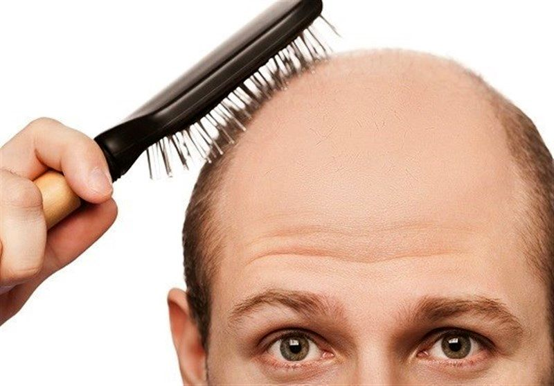 ريزش مو به دليل فشار جسمي
