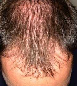 hair-loss-rooyesh-1.jpg