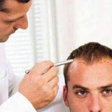 جلوگیری از عقب رفتن خط رویش مو