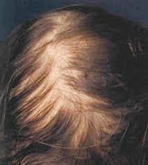 الگوهای ریزش موی زنانه