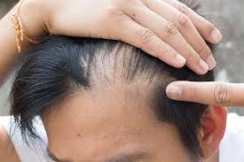 ریزش مو و اختلالات تیروئید