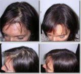 تشخيص و درمان ريزش مو